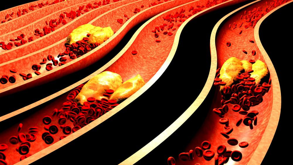 Clogged arteries are part of the many heart attack causes